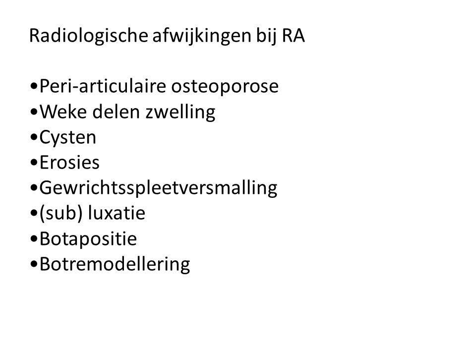 Radiologische afwijkingen bij RA Peri-articulaire osteoporose Weke delen zwelling Cysten Erosies Gewrichtsspleetversmalling (sub) luxatie Botapositie