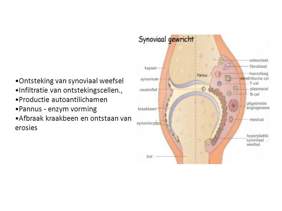 Ontsteking van synoviaal weefsel Infiltratie van ontstekingscellen., Productie autoantilichamen Pannus - enzym vorming Afbraak kraakbeen en ontstaan v