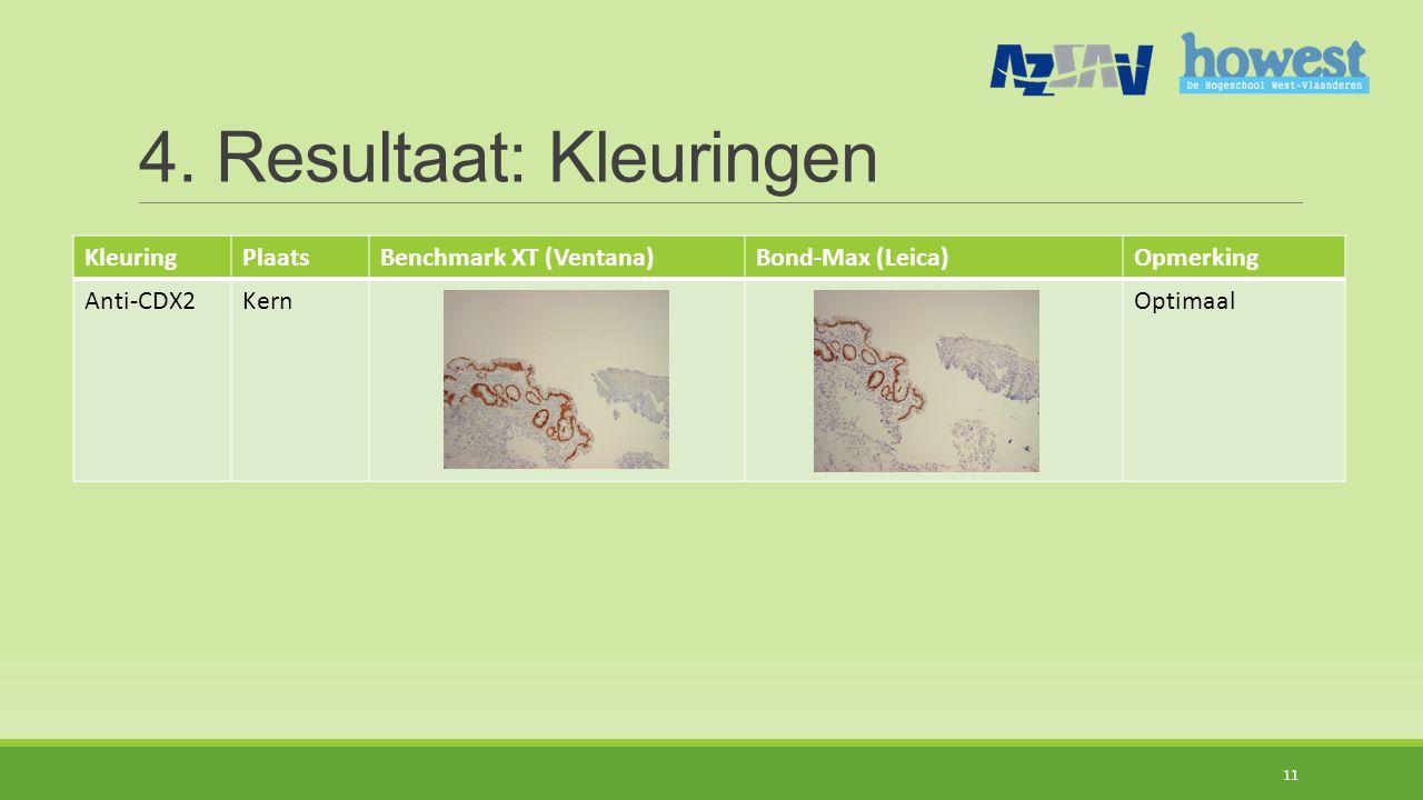 4. Resultaat: Kleuringen KleuringPlaatsBenchmark XT (Ventana)Bond-Max (Leica)Opmerking Anti-CDX2KernOptimaal 11