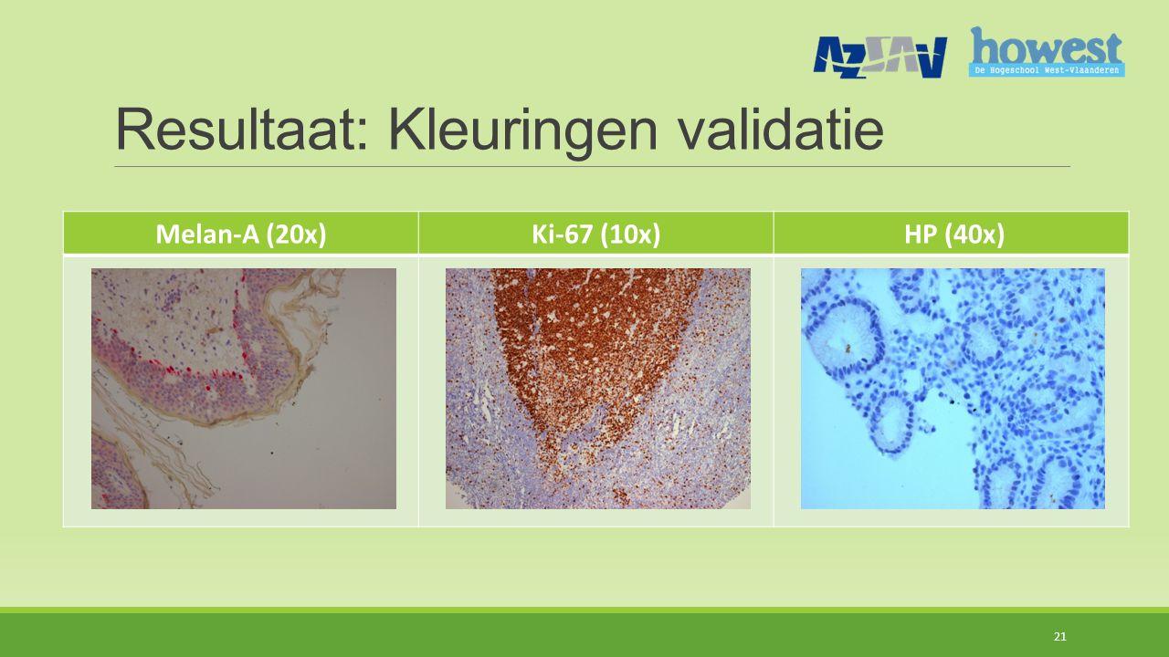Resultaat: Kleuringen validatie 21 Melan-A (20x)Ki-67 (10x) HP (40x)