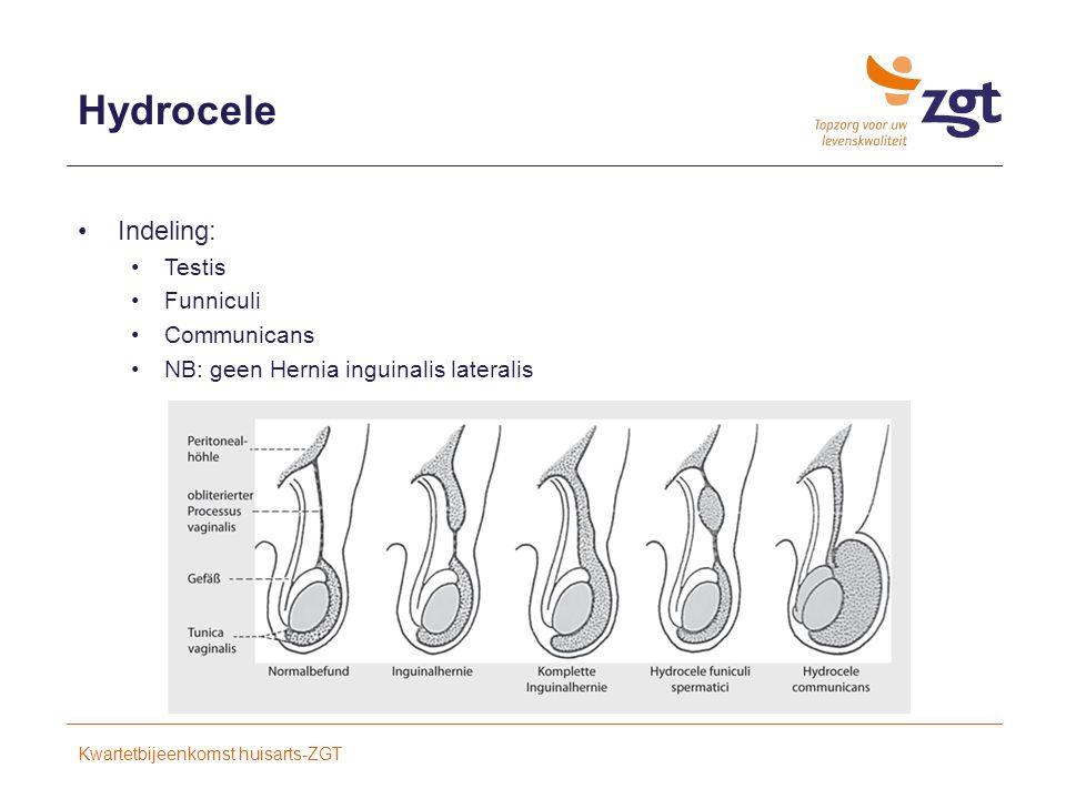 Hydrocele Indeling: Testis Funniculi Communicans NB: geen Hernia inguinalis lateralis Kwartetbijeenkomst huisarts-ZGT