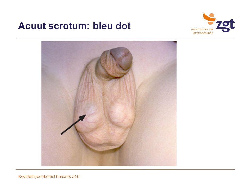 Acuut scrotum: bleu dot Kwartetbijeenkomst huisarts-ZGT