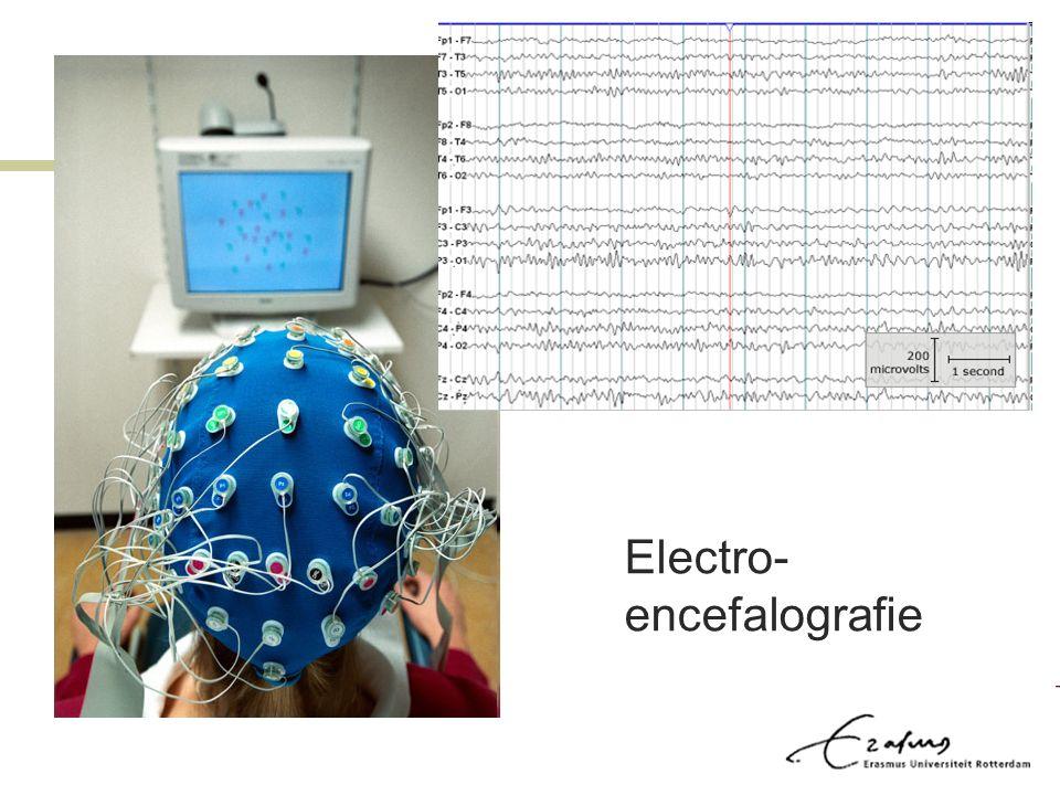 Electro- encefalografie