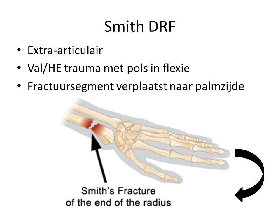 Barton DRF Intra-articulair, met verplaatsing handwortelbeentjes