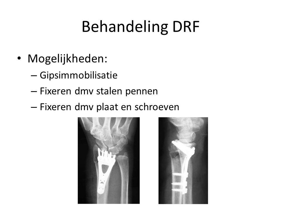 Behandeling DRF Rekening houden met: – Lokale factoren: Botkwaliteit Mate van verplaatsing Aantal fragmenten – Patient gebonden factoren: Leeftijd Activiteitsniveau Algemene toestand