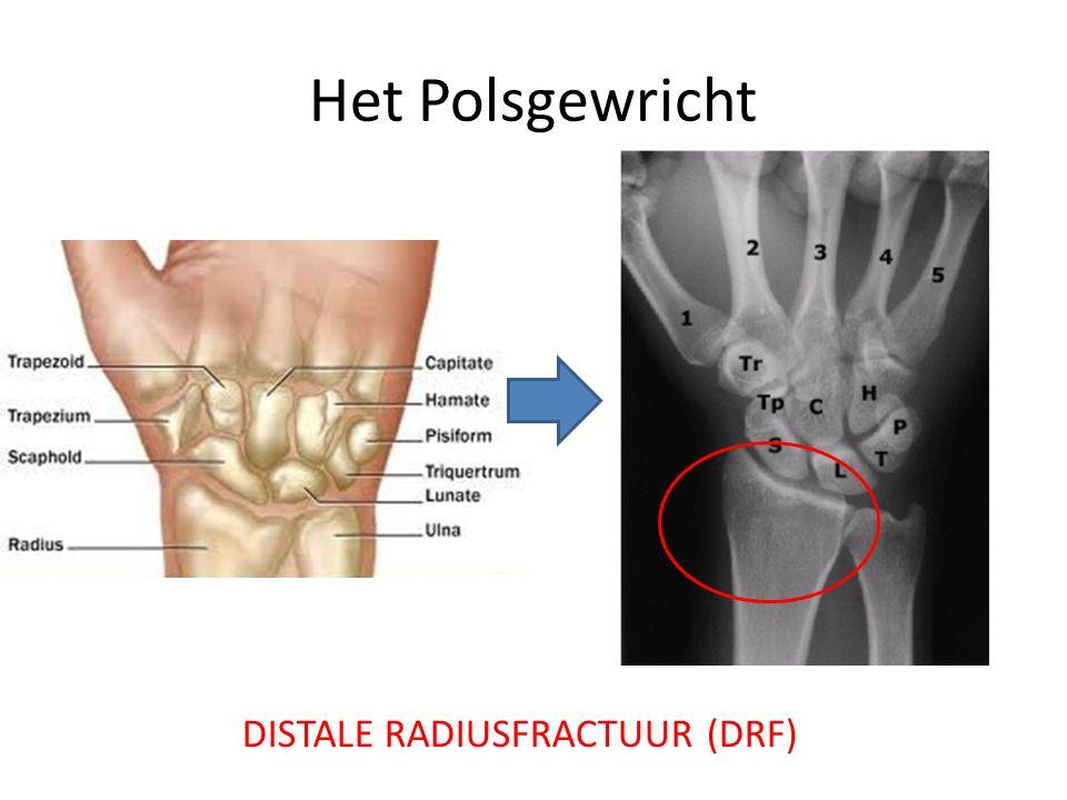 Fractuurmechanisme Typisch: struikelen, de handen beschermend vooruit steken val op de uitgestrekte hand