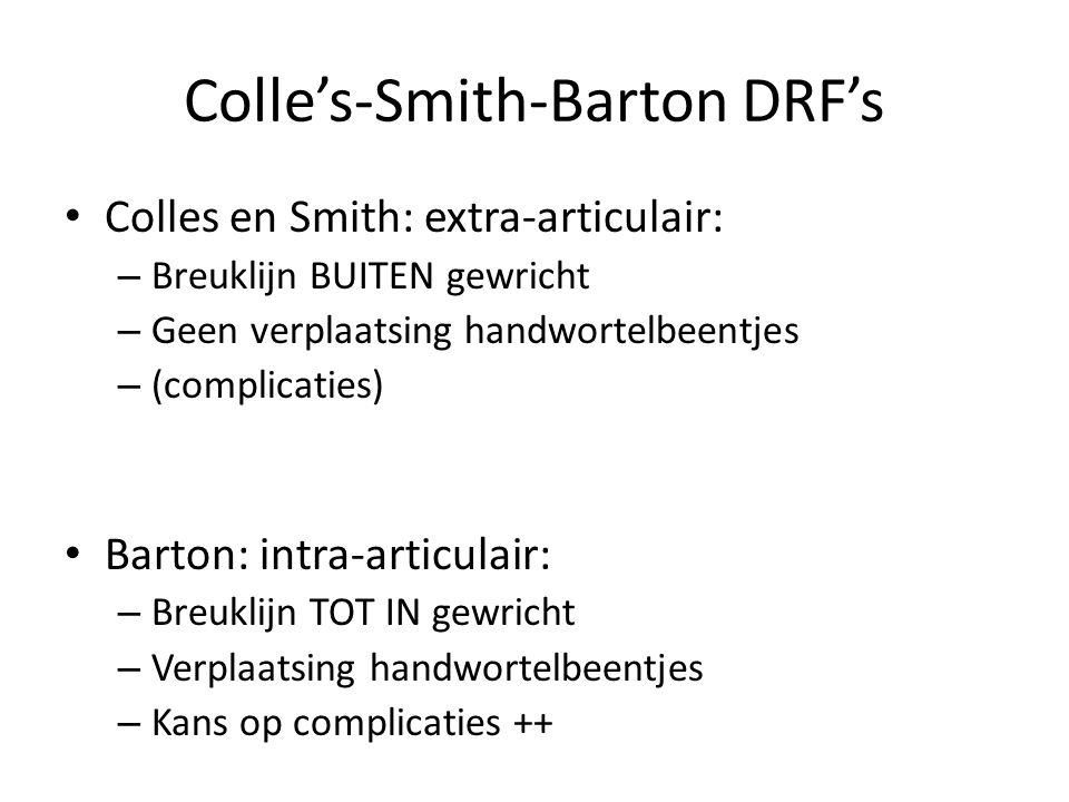 Colle's en Smith DRF Laatste 2-3 cm van spaakbeen Niet tot in gewrichtsvlak Extra-articulaire breuken Zonder verplaatsing handwortelbeentjes