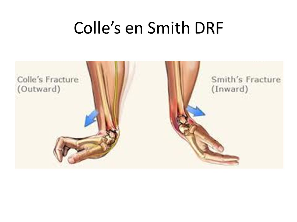 Colle's en Smith DRF