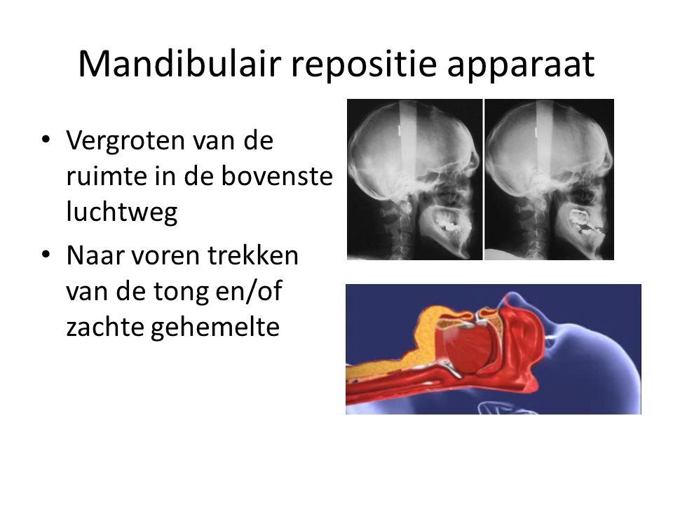 Mandibulair repositie apparaat Vergroten van de ruimte in de bovenste luchtweg Naar voren trekken van de tong en/of zachte gehemelte