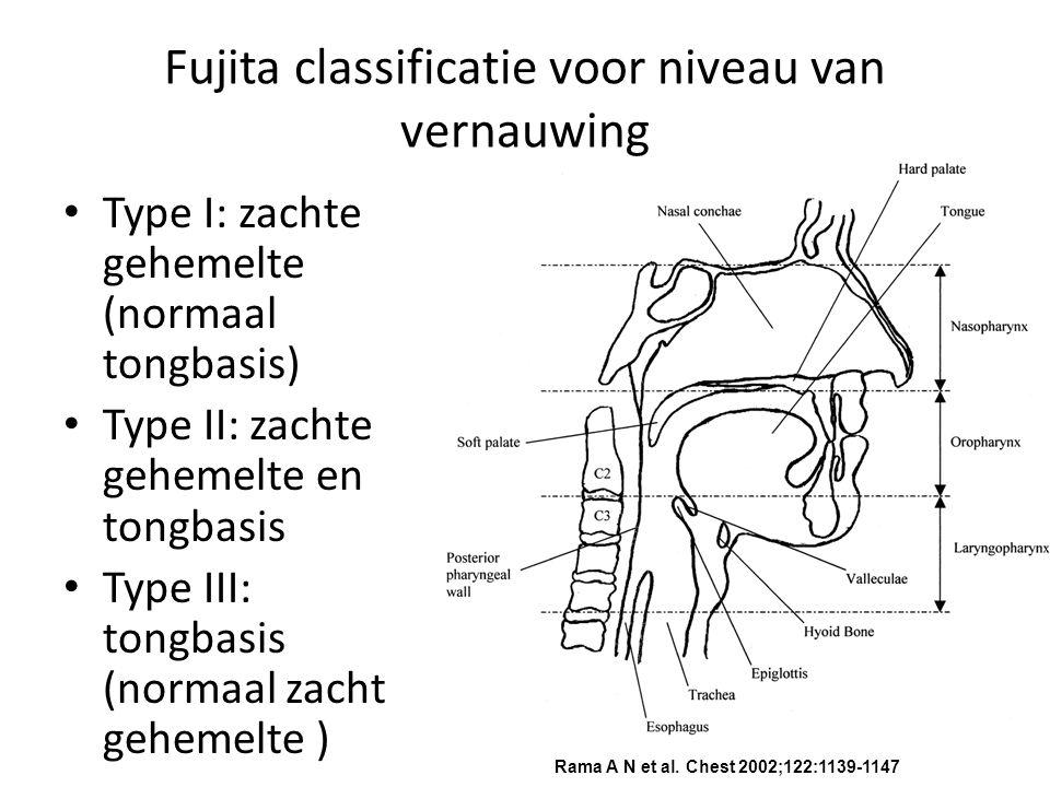 Fujita classificatie voor niveau van vernauwing Type I: zachte gehemelte (normaal tongbasis) Type II: zachte gehemelte en tongbasis Type III: tongbasis (normaal zacht gehemelte ) Rama A N et al.