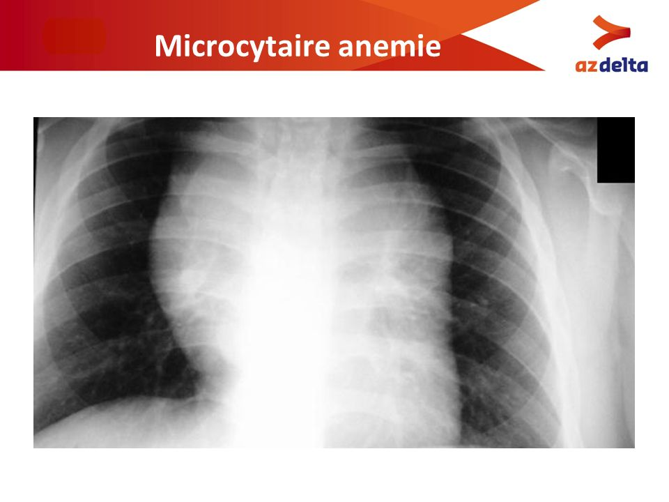 Microcytaire anemie