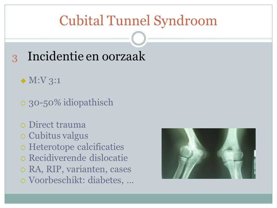 Cubital Tunnel Syndroom 3 Incidentie en oorzaak  M:V 3:1  30-50% idiopathisch  Direct trauma  Cubitus valgus  Heterotope calcificaties  Recidiverende dislocatie  RA, RIP, varianten, cases  Voorbeschikt: diabetes, …