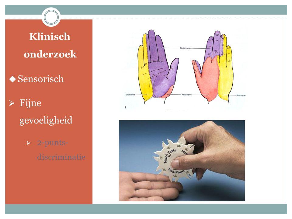 Klinisch onderzoek  Motorisch 1 Knijpkracht 2 Key Pinch test 3 Teken van Froment 4 Cross – fingers 12 3 4