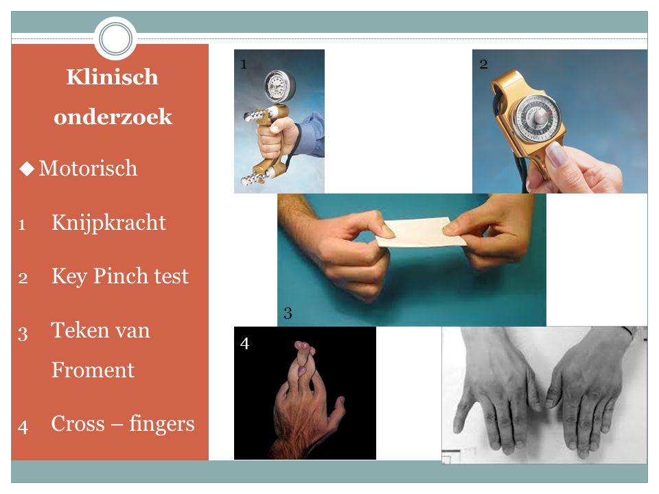 Klinisch onderzoek  Provocatieve Testen 1 Teken van Tinel 2 Directe compressie 3 Ellebooghyperflexie test