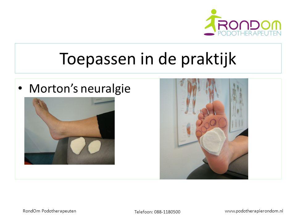 www.podotherapierondom.nl Telefoon: 088-1180500 RondOm Podotherapeuten Toepassen in de praktijk Morton's neuralgie