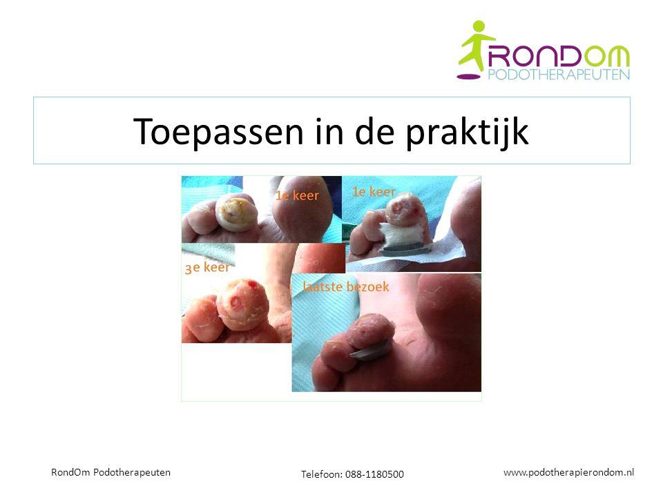 www.podotherapierondom.nl Telefoon: 088-1180500 RondOm Podotherapeuten Toepassen in de praktijk