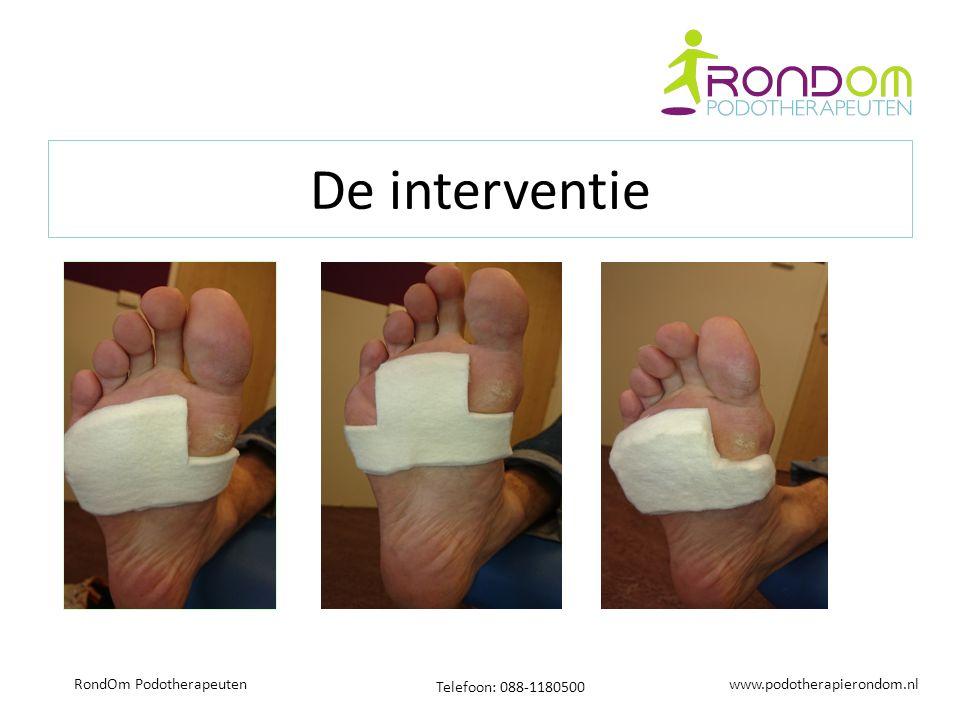 www.podotherapierondom.nl Telefoon: 088-1180500 RondOm Podotherapeuten De interventie