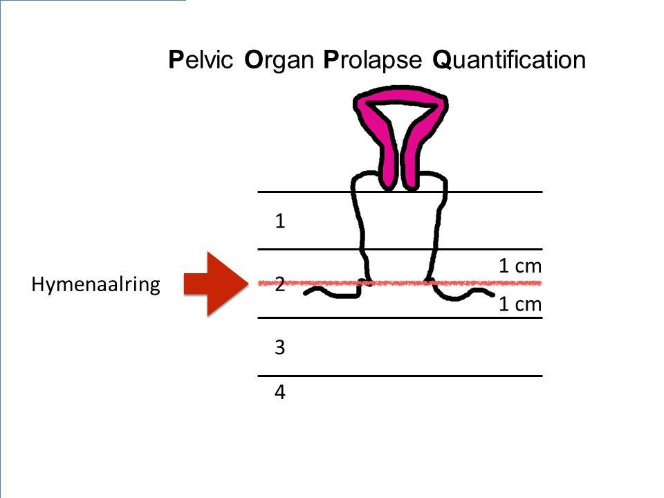 1 cm Pelvic Organ Prolapse Quantification 1 2 3 4 Hymenaalring
