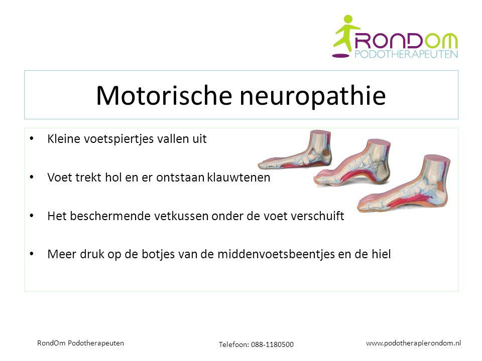 www.podotherapierondom.nl Telefoon: 088-1180500 RondOm Podotherapeuten Motorische neuropathie Kleine voetspiertjes vallen uit Voet trekt hol en er ont