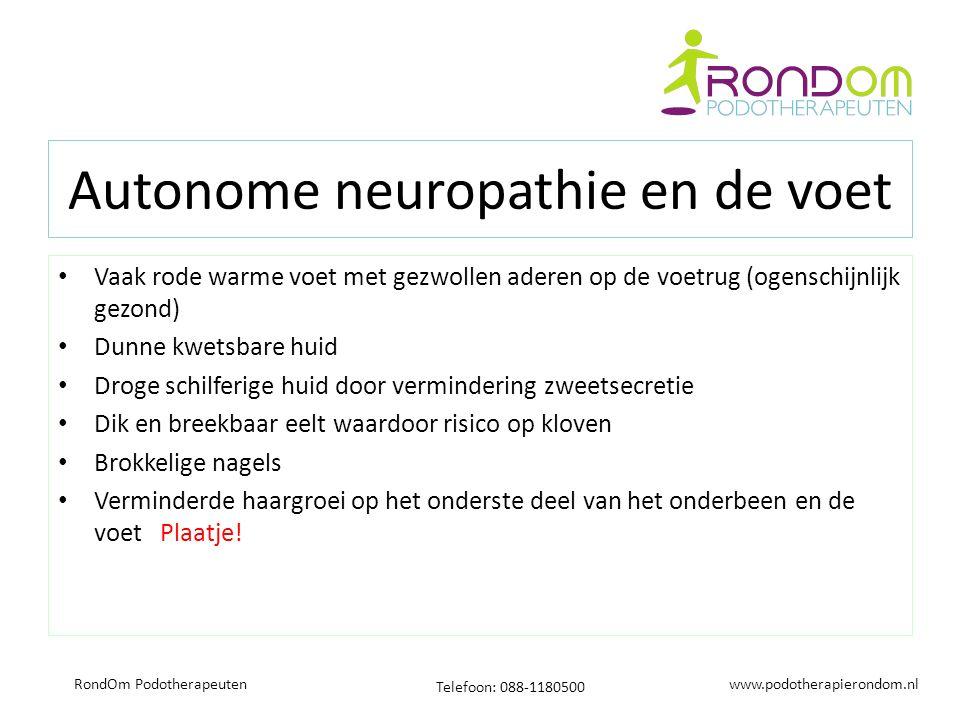 www.podotherapierondom.nl Telefoon: 088-1180500 RondOm Podotherapeuten Autonome neuropathie en de voet Vaak rode warme voet met gezwollen aderen op de