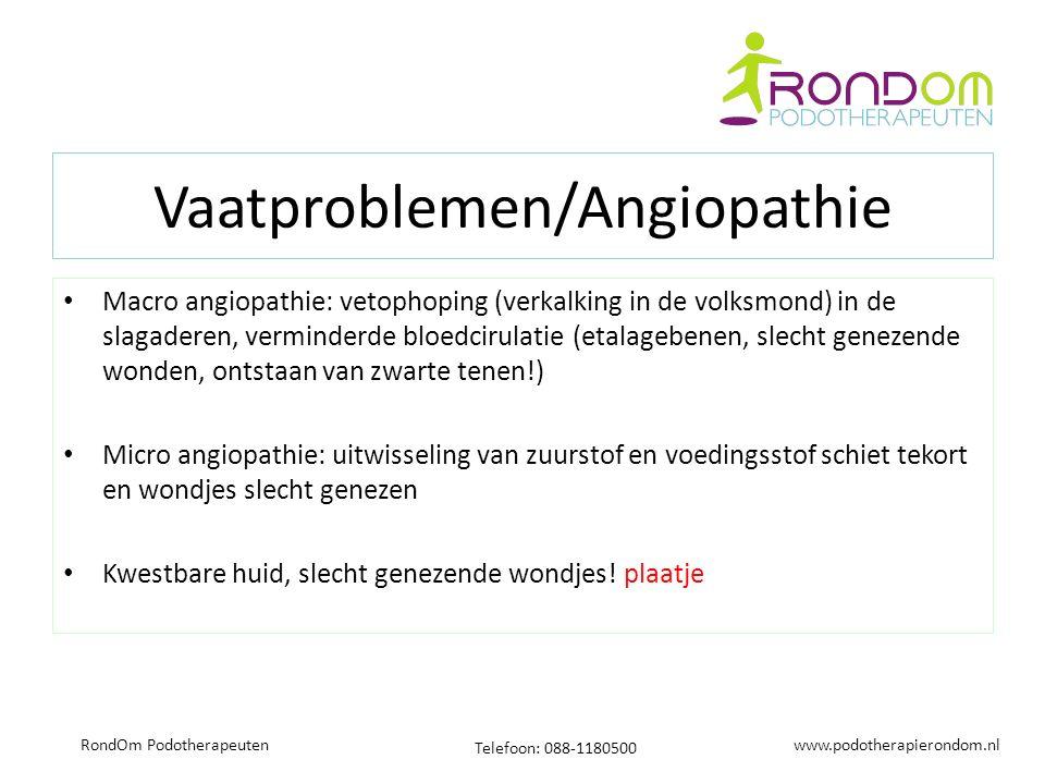 www.podotherapierondom.nl Telefoon: 088-1180500 RondOm Podotherapeuten Vaatproblemen/Angiopathie Macro angiopathie: vetophoping (verkalking in de volksmond) in de slagaderen, verminderde bloedcirulatie (etalagebenen, slecht genezende wonden, ontstaan van zwarte tenen!) Micro angiopathie: uitwisseling van zuurstof en voedingsstof schiet tekort en wondjes slecht genezen Kwestbare huid, slecht genezende wondjes.