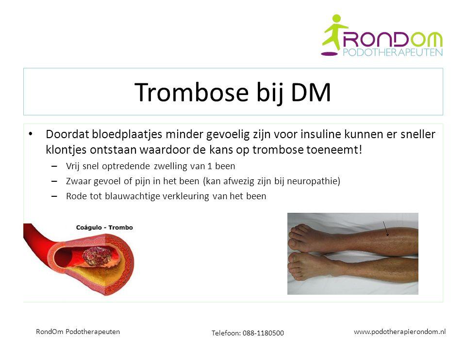 www.podotherapierondom.nl Telefoon: 088-1180500 RondOm Podotherapeuten Trombose bij DM Doordat bloedplaatjes minder gevoelig zijn voor insuline kunnen er sneller klontjes ontstaan waardoor de kans op trombose toeneemt.