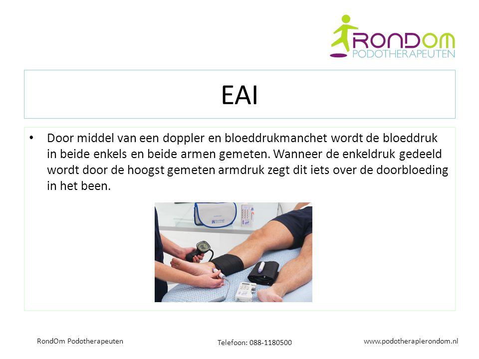 www.podotherapierondom.nl Telefoon: 088-1180500 RondOm Podotherapeuten EAI Door middel van een doppler en bloeddrukmanchet wordt de bloeddruk in beide enkels en beide armen gemeten.