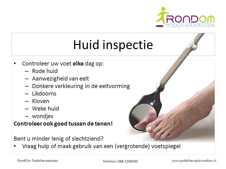 www.podotherapierondom.nl Telefoon: 088-1180500 RondOm Podotherapeuten Huid inspectie Controleer uw voet elke dag op: – Rode huid – Aanwezigheid van e