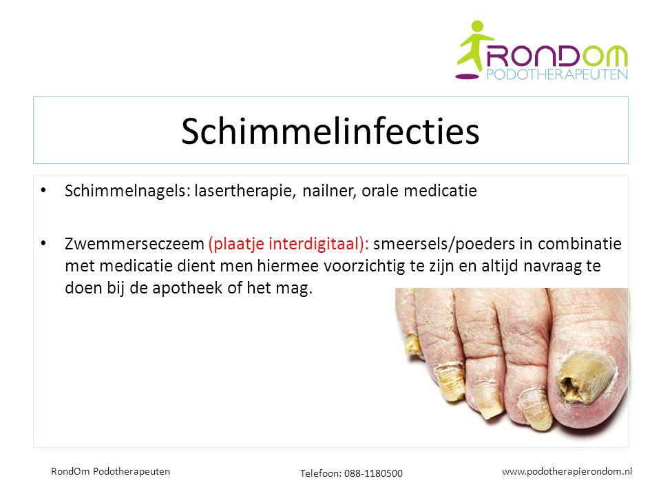www.podotherapierondom.nl Telefoon: 088-1180500 RondOm Podotherapeuten Schimmelinfecties Schimmelnagels: lasertherapie, nailner, orale medicatie Zwemmerseczeem (plaatje interdigitaal): smeersels/poeders in combinatie met medicatie dient men hiermee voorzichtig te zijn en altijd navraag te doen bij de apotheek of het mag.