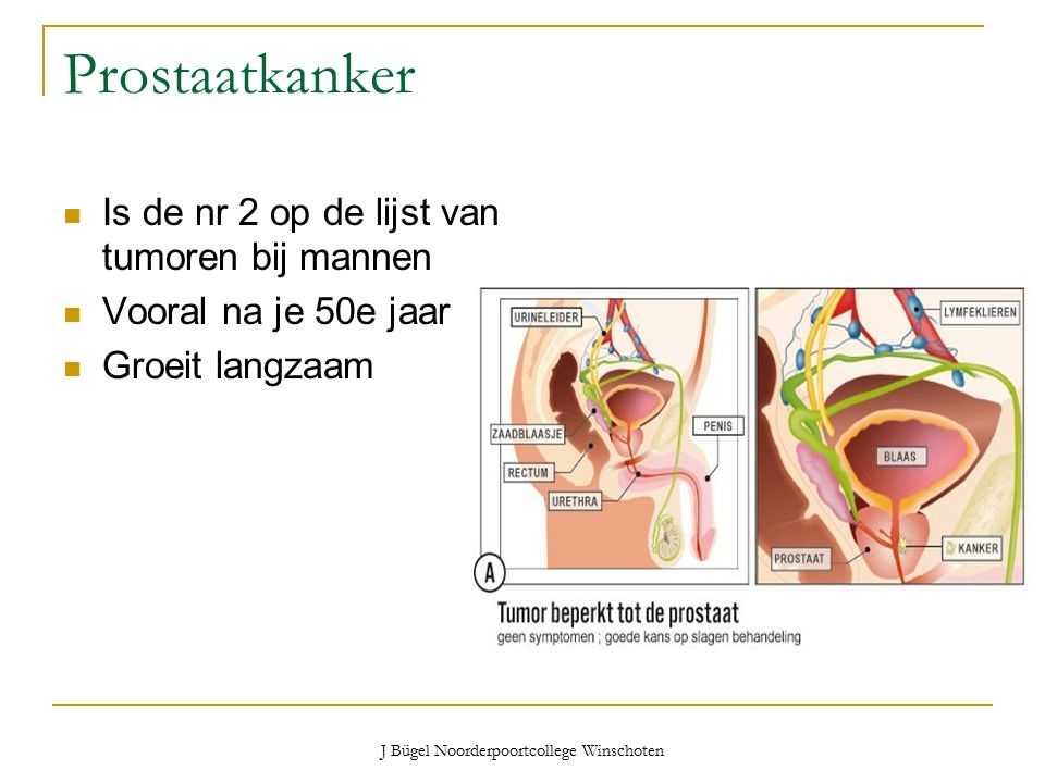 J Bügel Noorderpoortcollege Winschoten Prostaatkanker Is de nr 2 op de lijst van tumoren bij mannen Vooral na je 50e jaar Groeit langzaam