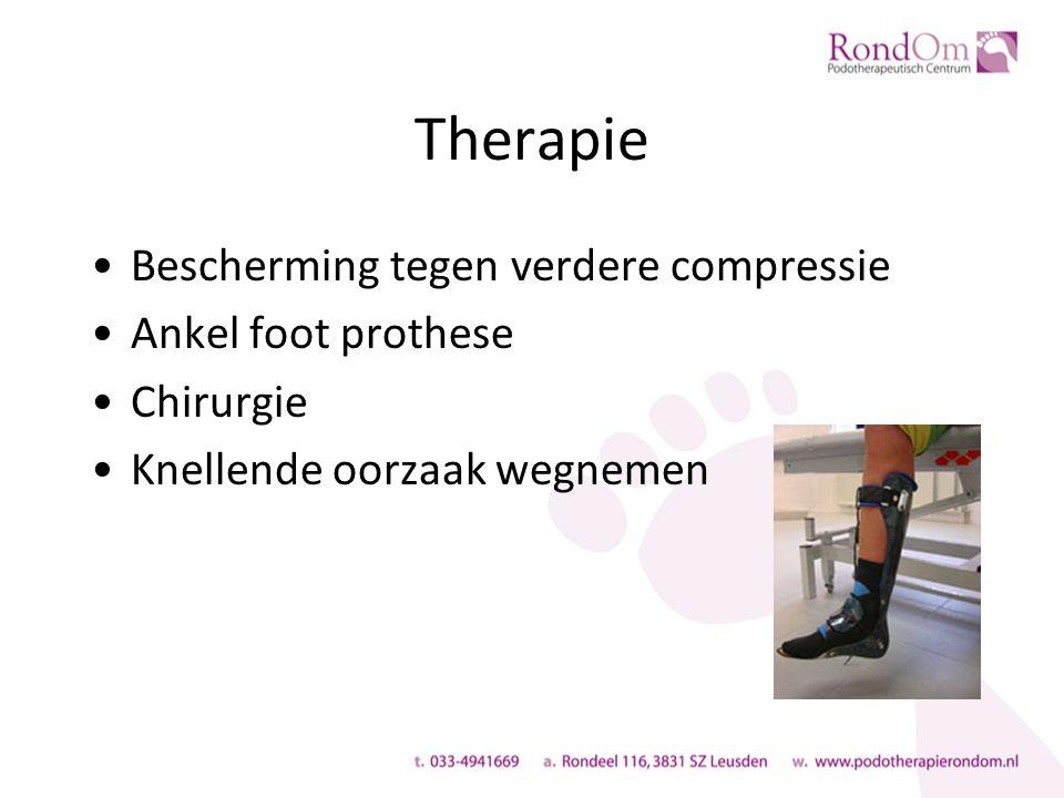 Therapie Bescherming tegen verdere compressie Ankel foot prothese Chirurgie Knellende oorzaak wegnemen
