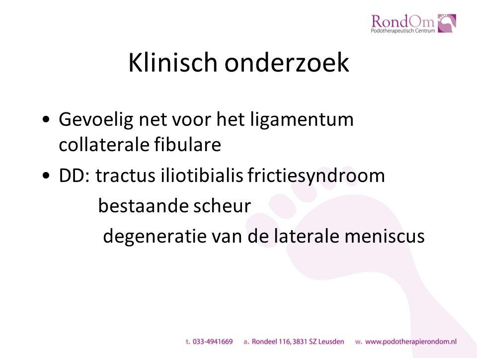 Klinisch onderzoek Gevoelig net voor het ligamentum collaterale fibulare DD: tractus iliotibialis frictiesyndroom bestaande scheur degeneratie van de laterale meniscus