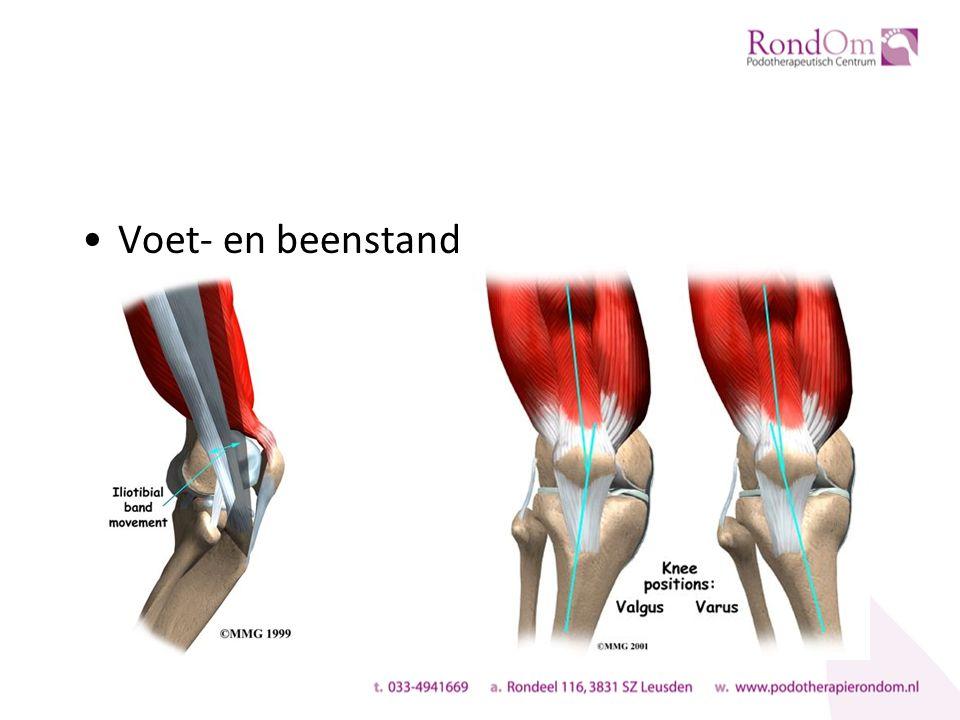Klinische bevindingen Pijn aan de laterale zijde van de knie: vaak niet exact gelokaliseerd (veelal tot de gewrichtsspleet) Hardlopen verergert de pijn Heuvel- en of berg af geeft/verergert de pijn Pasverlening verergert de pijn
