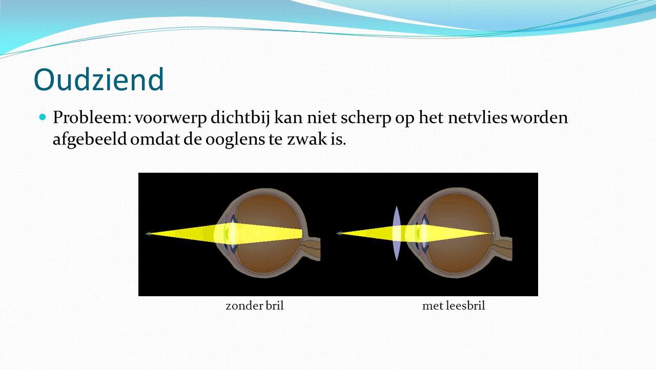 Oudziend Probleem: voorwerp dichtbij kan niet scherp op het netvlies worden afgebeeld omdat de ooglens te zwak is.