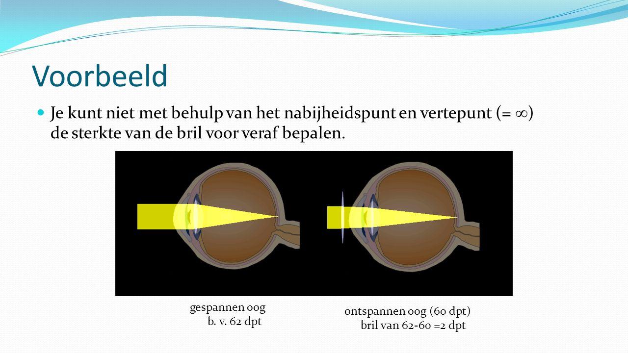 Voorbeeld Je kunt niet met behulp van het nabijheidspunt en vertepunt (=  ) de sterkte van de bril voor veraf bepalen. gespannen oog b. v. 62 dpt ont