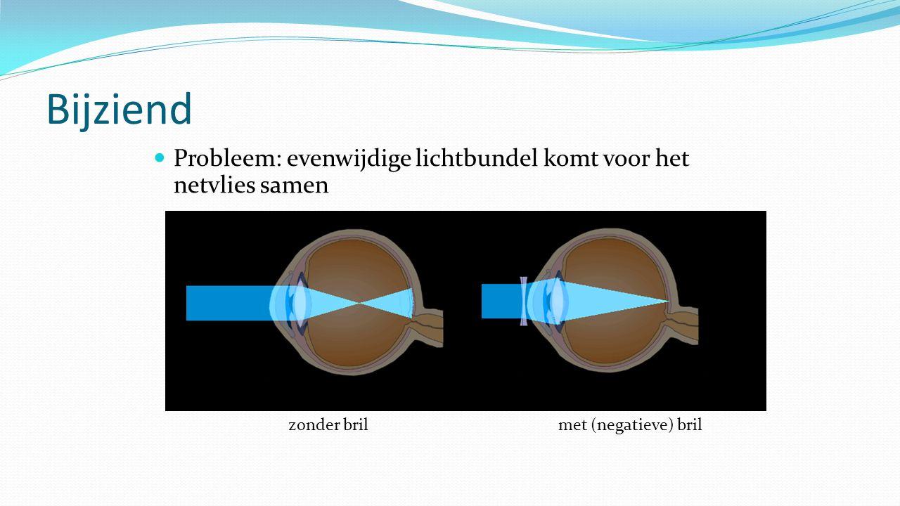 Bijziend Probleem: evenwijdige lichtbundel komt voor het netvlies samen zonder brilmet (negatieve) bril