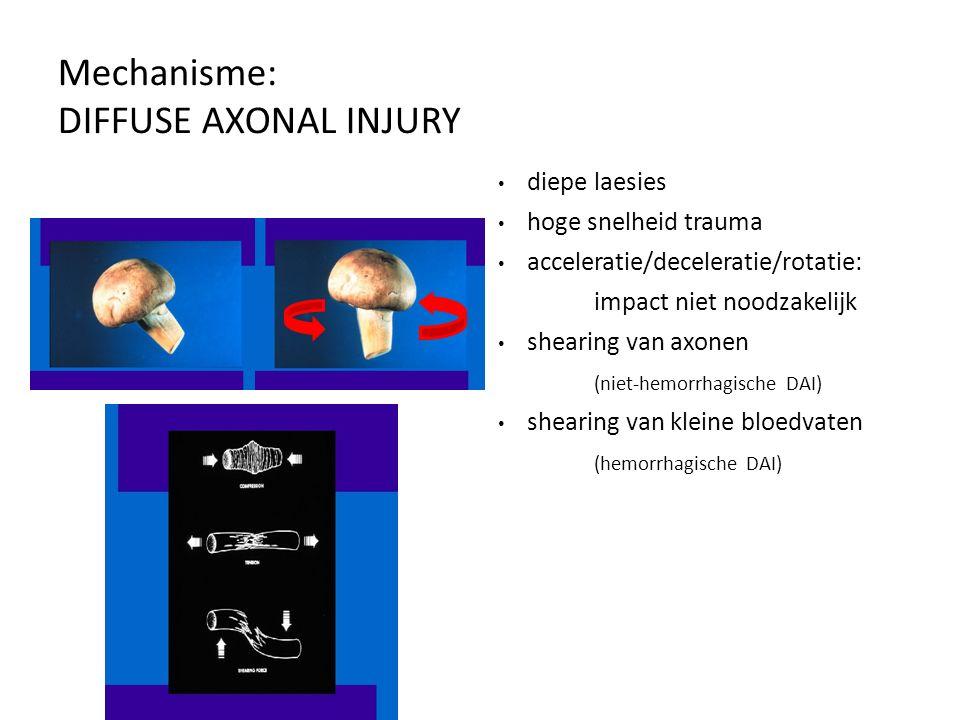 Mechanisme: DIFFUSE AXONAL INJURY diepe laesies hoge snelheid trauma acceleratie/deceleratie/rotatie: impact niet noodzakelijk shearing van axonen (ni