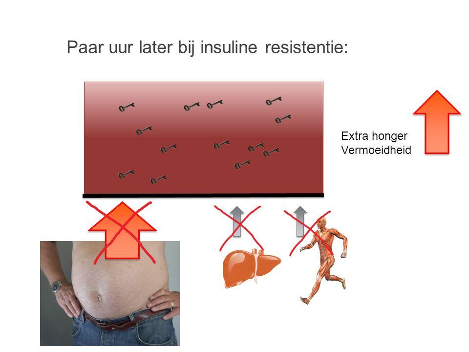 Paar uur later bij insuline resistentie: Extra honger Vermoeidheid