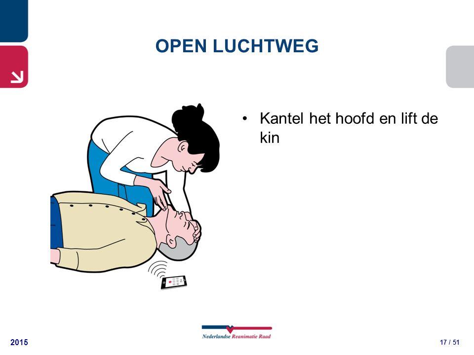 2015 17 / 51 Kantel het hoofd en lift de kin OPEN LUCHTWEG