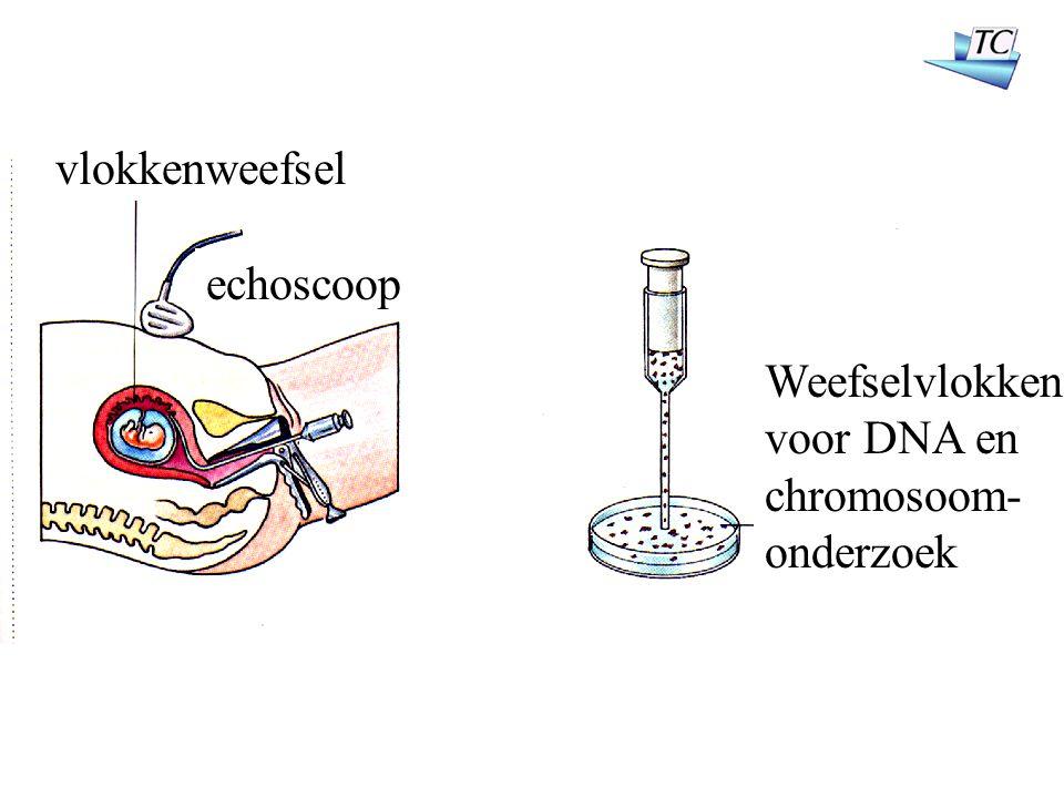 vlokkenweefsel echoscoop Weefselvlokken voor DNA en chromosoom- onderzoek
