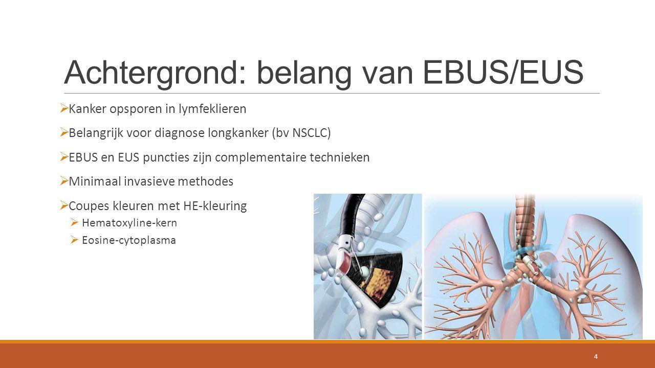 Achtergrond: belang van EBUS/EUS  Kanker opsporen in lymfeklieren  Belangrijk voor diagnose longkanker (bv NSCLC)  EBUS en EUS puncties zijn complementaire technieken  Minimaal invasieve methodes  Coupes kleuren met HE-kleuring  Hematoxyline-kern  Eosine-cytoplasma 4
