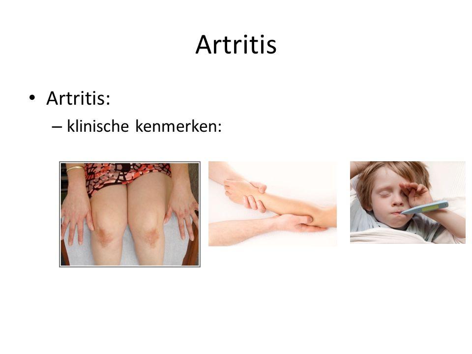 Artritis Artritis: – klinische kenmerken: