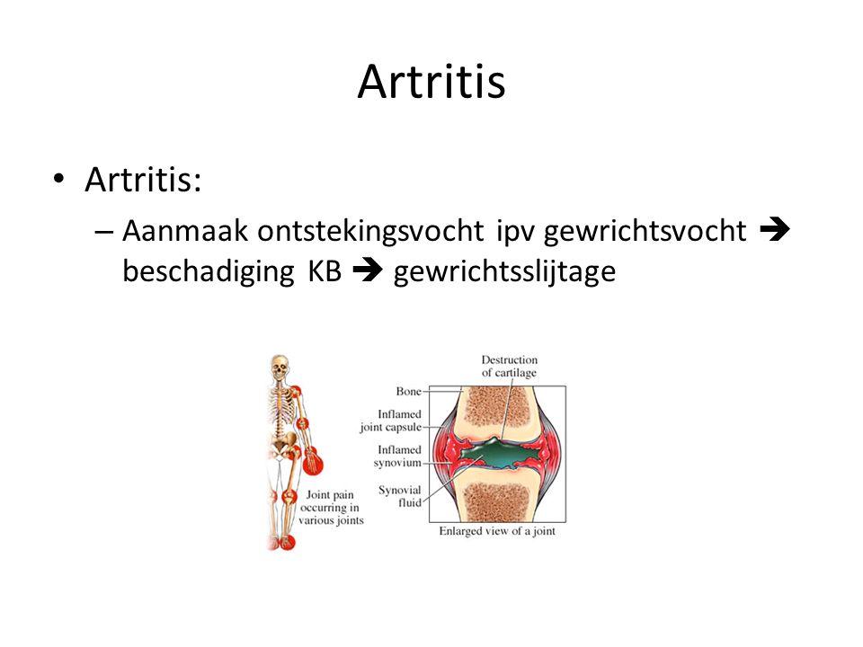 Artritis Artritis: – Aanmaak ontstekingsvocht ipv gewrichtsvocht  beschadiging KB  gewrichtsslijtage