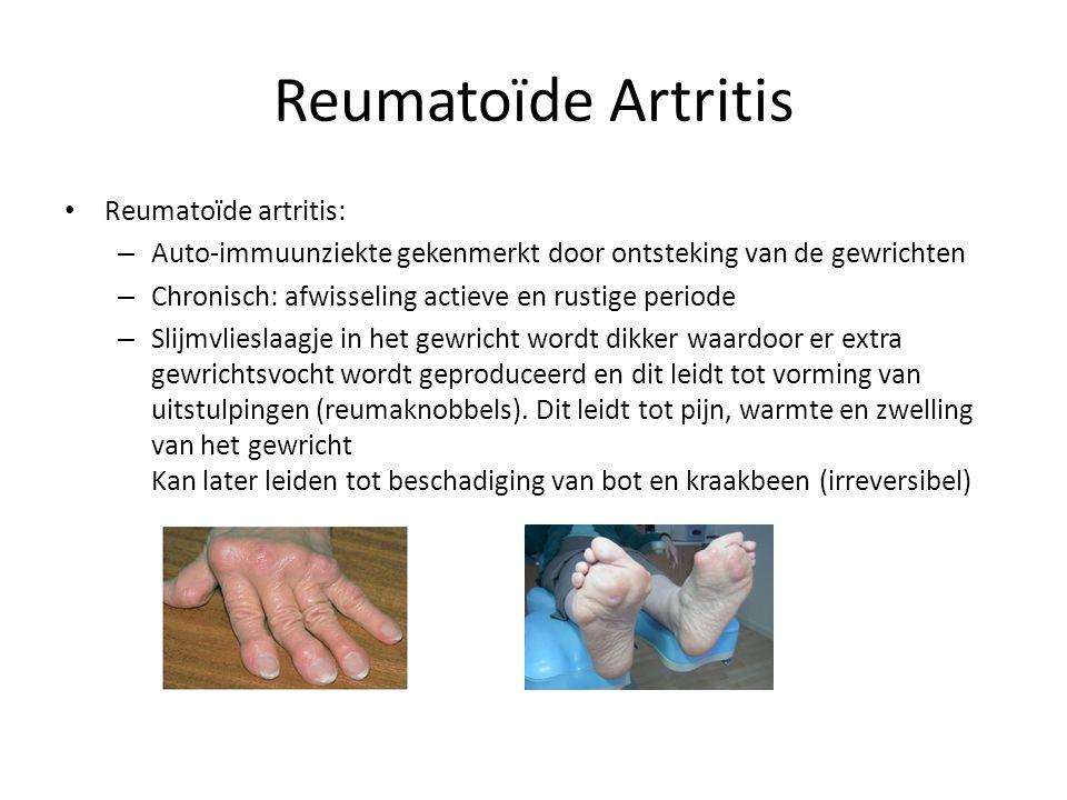 Reumatoïde Artritis Reumatoïde artritis: – Auto-immuunziekte gekenmerkt door ontsteking van de gewrichten – Chronisch: afwisseling actieve en rustige periode – Slijmvlieslaagje in het gewricht wordt dikker waardoor er extra gewrichtsvocht wordt geproduceerd en dit leidt tot vorming van uitstulpingen (reumaknobbels).