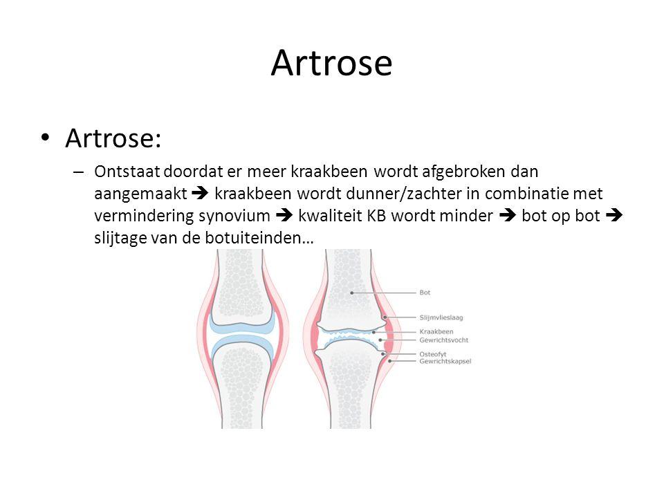 Artrose Artrose: – Ontstaat doordat er meer kraakbeen wordt afgebroken dan aangemaakt  kraakbeen wordt dunner/zachter in combinatie met vermindering synovium  kwaliteit KB wordt minder  bot op bot  slijtage van de botuiteinden…