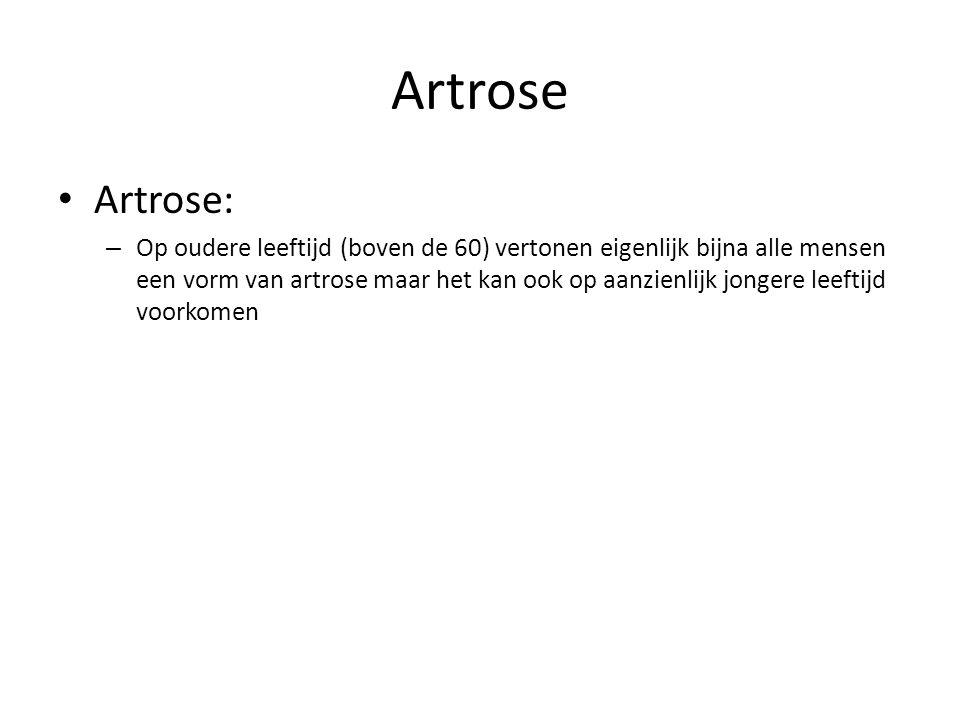 Artrose Artrose: – Op oudere leeftijd (boven de 60) vertonen eigenlijk bijna alle mensen een vorm van artrose maar het kan ook op aanzienlijk jongere leeftijd voorkomen
