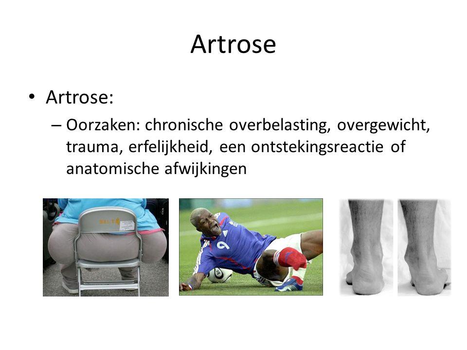 Artrose Artrose: – Oorzaken: chronische overbelasting, overgewicht, trauma, erfelijkheid, een ontstekingsreactie of anatomische afwijkingen