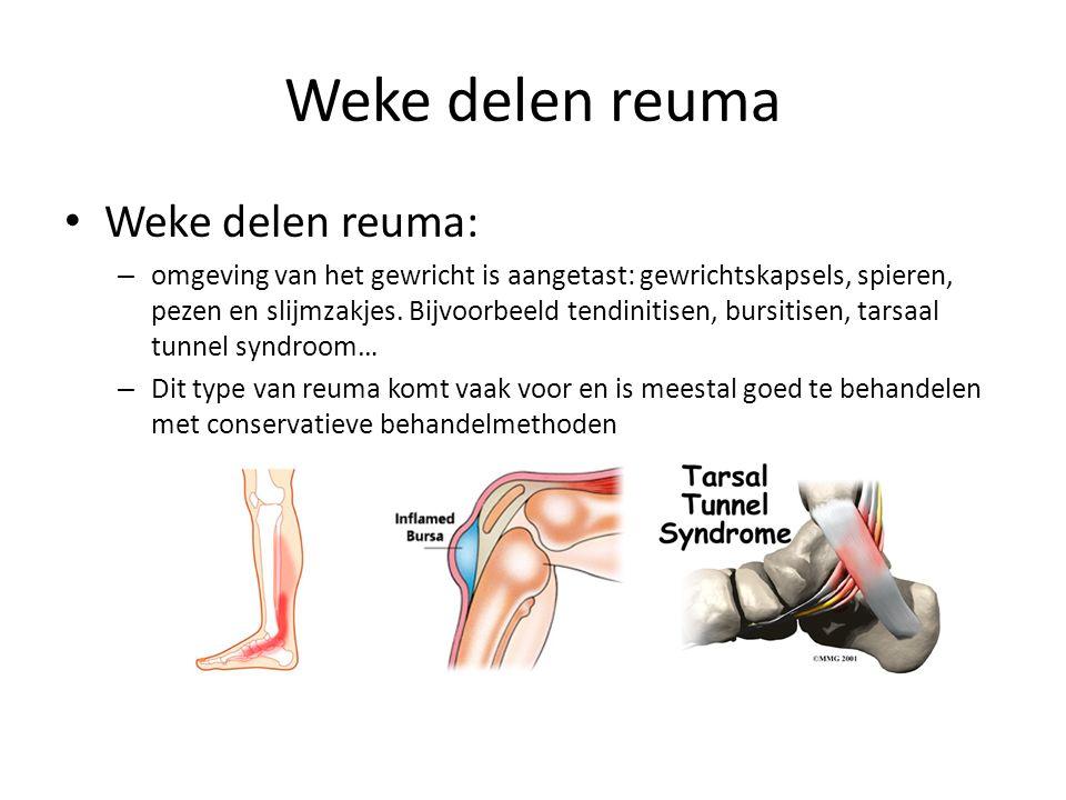 Weke delen reuma Weke delen reuma: – omgeving van het gewricht is aangetast: gewrichtskapsels, spieren, pezen en slijmzakjes.