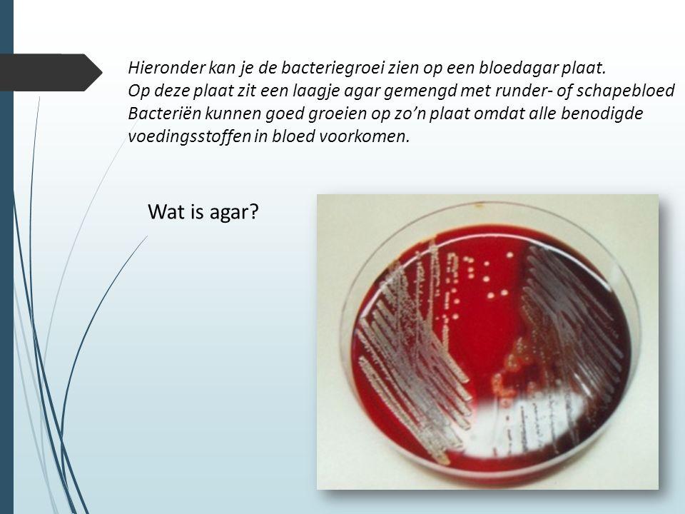Hieronder kan je de bacteriegroei zien op een bloedagar plaat.