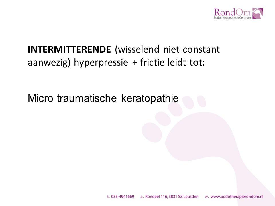 INTERMITTERENDE (wisselend niet constant aanwezig) hyperpressie + frictie leidt tot: Micro traumatische keratopathie